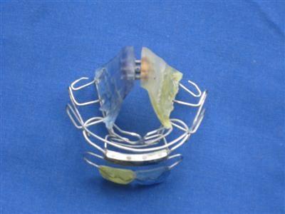 abnehmbare Zahnspange (Custom)jpg